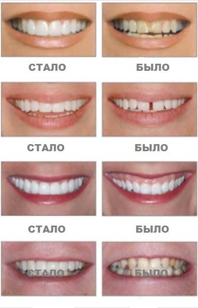 установить виниры, изменить цвет зубной эмали, реставрация зубов, восстановление зубов